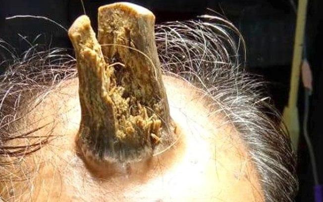 Agricultor de 74 anos precisou passar por cirurgia após passar cinco anos com massa desconhecida crescendo na cabeça em formato de chifre